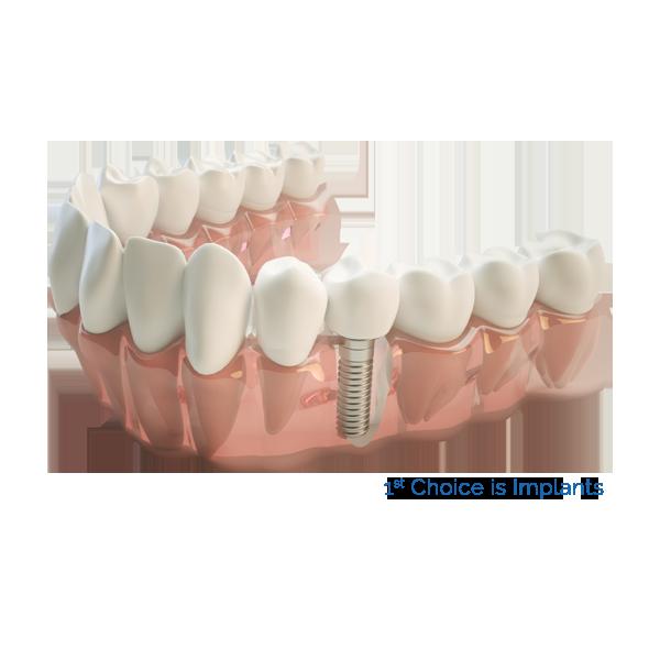 Facets - Dental Clinic Kochi | Dental Implants in Kochi