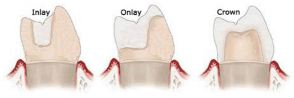 inlays-onlays